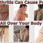 Arthritis – Prevention and Pain Relief