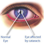 Vitamin C from food tied to lower cataract risk