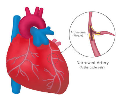 Stop a Heart Attack Naturally