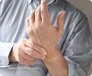 Natural Inflammation Remedies for Pain and Arthritis