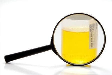 Warning Signals In Your Urine Color