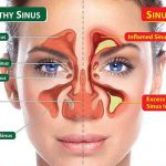 How to Clear Blocked Sinuses, Naturally and Fast!