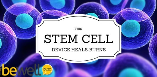 This Stem Cell Device Heals Burns