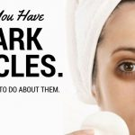 So You Have Dark Circles. Here's What to Do About Them.