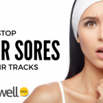 Stop the Causes of Canker Sores in Their Tracks