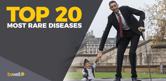 20 Most Rare Diseases