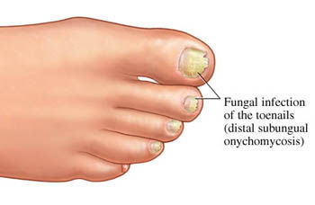 Nail fungus: How to clear up this unsightly infection