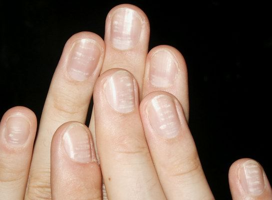 White band on nail plate thumb
