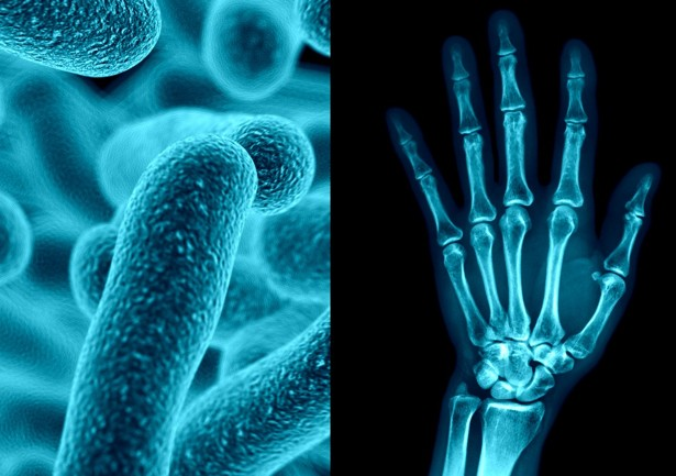 joint pain, gut bacteria