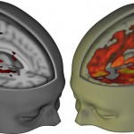 The LSD Effects on Your Brain