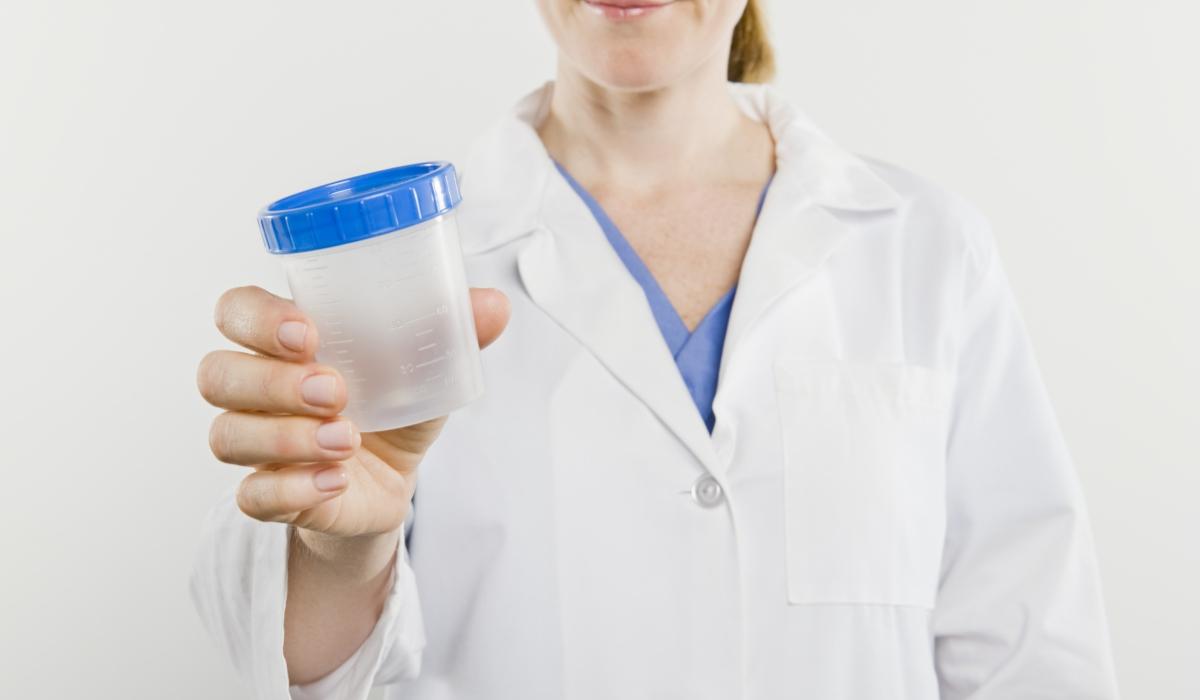 diabetes urine testing