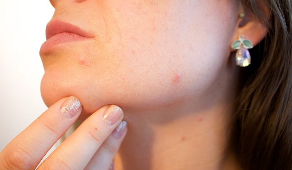 Skin Damaging Habits