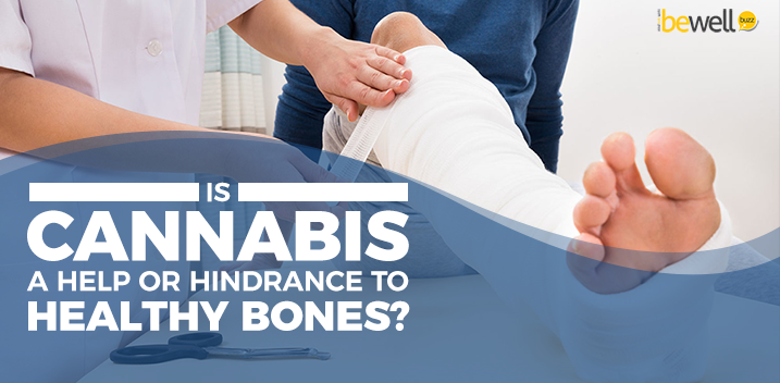 Is Cannabis A Help or Hindrance to Healthy Bones?