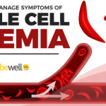 Sickle Cell Anemia: How to Manage Symptoms Naturally