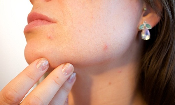 Two different studies showed that using a tea tree oil gel was effective in treating mild to moderate acne.