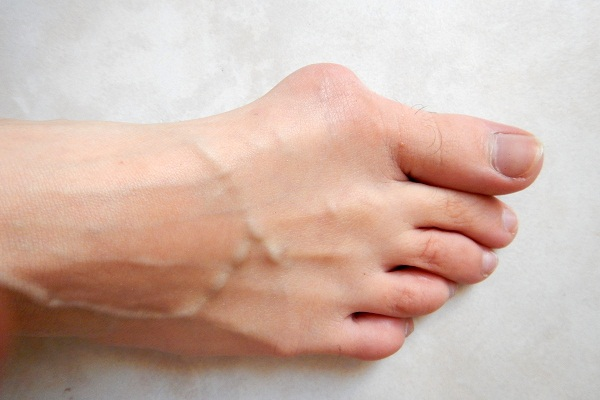 A bunion is a bony protrusion on the side of your foot just beneath the big toe.