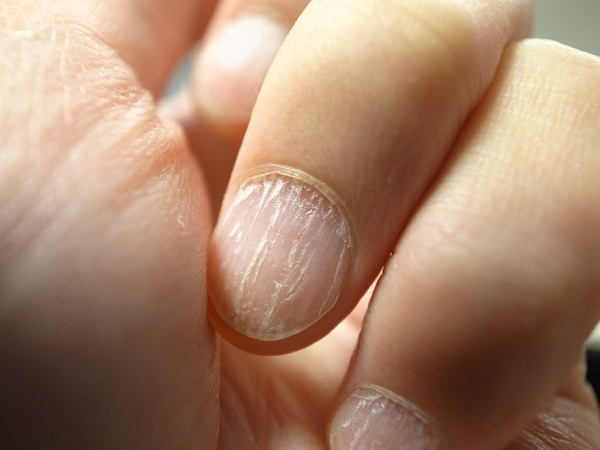 Dry, cracked nails may be a sign of hypothyroidism or indicate a deficiency in vitamins A and C, or in the B vitamin biotin.
